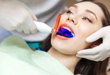 zobu balināšana ar lāzeri
