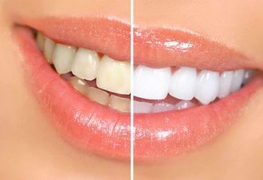 kā balināt zobus mājas apstākļos