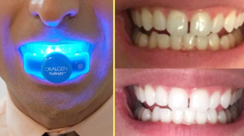 labākie zobu balināšanas komplekti