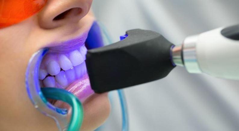 zobu balināšanas procedūra